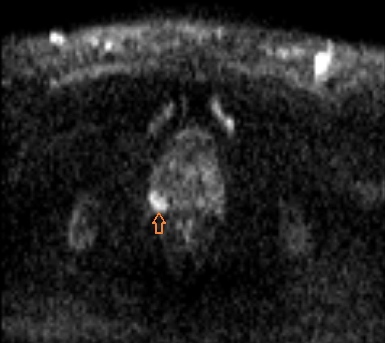 MRT der Prostata - Prostata-Carcinom (Diffusion)